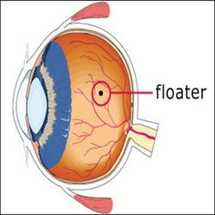 Non-Invasive Ways to Help Rid Of Eye Floaters:  http://myqute.com/blog/12-ways-rid-eye-floaters-without-invasive-procedures  #eye #health