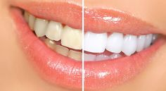 5 Home Remedies for Whiter Teeth ---- (1) Banana Peel - (2) Strawberries - (3) Lemon Peel and Juice - (4) Crunchy Carrots - (5) Baking Soda ---- http://myhealthlist .net/2013/03/5-home-remedies-for-whiter-teeth/