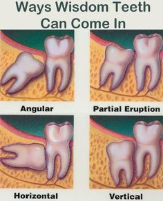 Wisdom Tooth Eruption Always interesting what you can find when you type in plastic surgery and other related terms