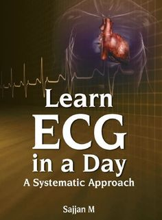 Download the Book: Learn ECG in a Day PDF For Free, Preface: Interpretation of electrocardiograph is an essential part of cardiovascular diagnosi...