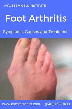 Arthritis may affect any part of the foot and ankle. Joint pain in the feet is often one of the symptoms of early rheumatoid arthritis. NYC Stem Cell Institute provides the effective Regenerative Medicine Stem Cell Therapy for Foot Arthritis. Arthritis Causes, Knee Arthritis, Types Of Arthritis, Rheumatoid Arthritis, Knee Doctor, Knee Pain Relief, Body Joints, Stem Cell Therapy, Regenerative Medicine