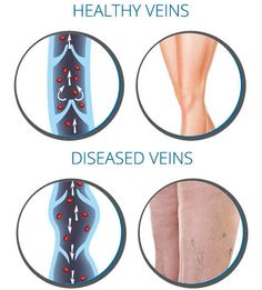 Diagram comparing an artery vein and capillary each in cross causes of vein disease ccuart Choice Image