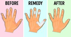 I lékaři považují tuto metodu za efektivní. William Shakespeare Sonnets, Advocare, Warts, Annoyed, Home Remedies, Diabetes, Rid, Health Fitness, How To Remove