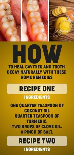 How To Heal Cavities And Tooth Decay Naturally With These Home Remedies Available Oral Care Cold Home Remedies, Natural Health Remedies, Herbal Remedies, Home Remedies For Cavities, Flu Remedies, Holistic Remedies, Natural Cures, Natural Healing, Natural Beauty