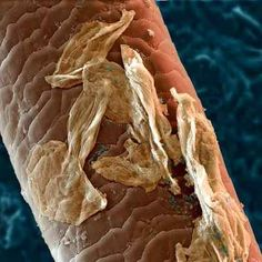 Human Hair With Skin Cells and Bacteria