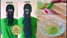 This is a very simple remedy to oprepare hair serum that you can use on your scalp and hair lenghth both. For this hair serum you will just 2 things Fresh aloe vera gel +Vitamin E oil What to do: Take 1 fresh aloe vera leaf. Wash it very well Remove it green part, so …