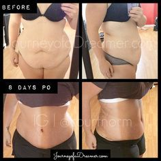 I know I keep saying it, but time has been flying by! I wrote about the actual s… I know I keep saying it, but time has been flying by! I wrote about the actual surgery day and the first few days of recovery already. Last time I talked about… Before And After Liposuction, Tatuaje Tammy Tuck, Tummy Tuck Pictures, Tummy Tuck Surgery, Body Surgery, Surgery Gift, Weight Loss Surgery, Tummy Tuck Tattoo, Beauty