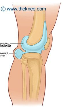 1000+ images about Knee arthritis on Pinterest | Knee ...