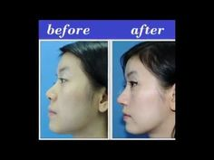 The Best Nose Augmentation Thailand