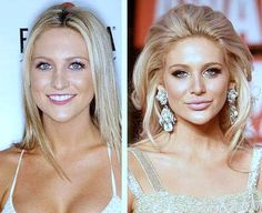 Stephanie Pratt Plastic Surgery Before And After Photos