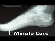 722b3fb80f 9 Best heel spur relief images   Health, Heel pain, Acupuncture