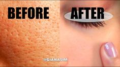 D.I.Y - Get rid of LARGE Pores NATURALLY! IT WORKS! - YouTube