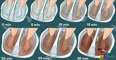 Com este método incrível, você vai tirar todas as toxinas do seu corpo pelos pés!   Cura pela Natureza