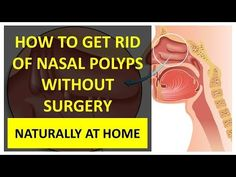 How to get rid of nasal polyps without surgery naturally at home. Nasal polyps develop on the lining of the nose or sinuses. They are benign soft growths tha. Sinus Remedies, Feel Better, Surgery, Medicine, Healing, Inspirational Quotes, Nature, Youtube, Naturaleza
