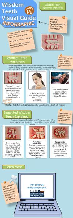 Impacted wisdom teeth infographic. Children's Dentistry, pediatric dentist in Bountiful, UT @ www.utahchildrensdentistry.com
