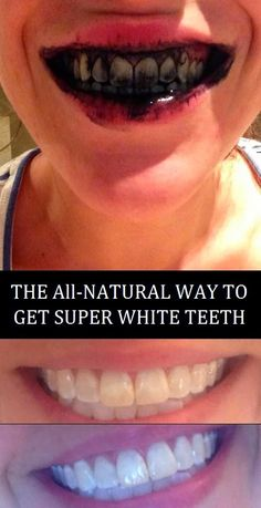 The All-Natural Way To Get Super White Teeth | My Favorite Things