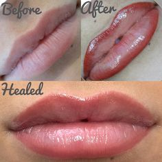 💋👄💉 Stages of lip procedure 🙌🏻 seamless, airbrushed part lip blend. Not a lipstick look, just gorgeous natural definition. Source by tinaqlmn Lip Liner Lip Color Tattoo, Lip Liner Tattoo, Eyeliner Tattoo, Makeup Tattoos, Cosmetic Lip Tattoo, Lip Permanent Makeup, Eyebrow Makeup, Lip Makeup, Permanent Lip Filler