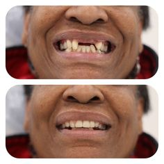 98 Best Dentures Clinic images in 2019 | Clinic, Dental caps