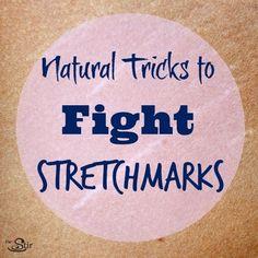 stretchmark treatments