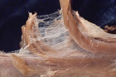 Fascia: A Hidden Piece of the Puzzle of Fibromyalgia Pain By Ginevra Liptan, MD