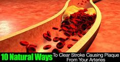 10 Natural Ways To Clear Stroke Causing Plaque From Your Arteries