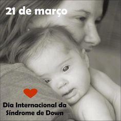 Hoje Dia internacional da Síndrome de Down