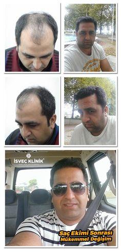 Saç Ekimi Fiyatı http://www.isvecestetik.com/sac-ekimi/
