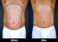 Αποτέλεσμα εικόνας για pudenda fat man liposuction
