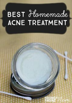 Best Homemade Acne Treatment - Do you suffer from acne? This natural remedy for acne not only zaps zits quickly, but it also soothes and moisturizes the skin. Next time you suffer from a breakout, skip those drugstore products loaded with chemicals and unnatural ingredients and opt to make this homemade acne spot treatment. #bestacnetreaments