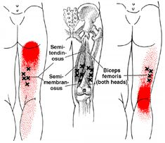 Semimembranosus | The Trigger Point & Referred Pain Guide