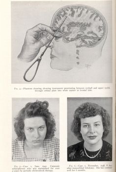 deformutation:  barbaric and primitive procedure called lobotomy.   Was done to thousands without consent.  Caused personality changes, made them more docile and therefore easier to handle, memory loss   suicide-candy