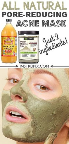 Homemade face mask for acne, blackheads and large pores! It's great for oily and dry skin! It also helps with fine lines and general detoxing. | Instrupix.com Clay Mask For Pores, Clay Masks, Face Mask For Blackheads, Mask For Oily Skin, Acne Face Mask, Diy Face Mask, Pimples, Diy Mask, Mask For Acne Homemade