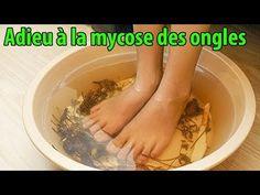 Weird But True, Nail Fungus, Natural Treatments, Toe Nails, Fungi, You Nailed It, Health, Tips, Plein Air
