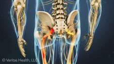 Learn proven sciatica exercises to relieve sciatica pain caused by various low back conditions, along with complete exercise instructions and illustrations.