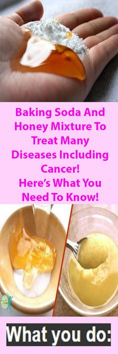 Baking Soda And Honey Mixture To Treat Many Diseases Including Cancer! Here's What You Need To Know!