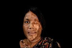 Acid Attack Survivor by Zoriah Miller on 500px
