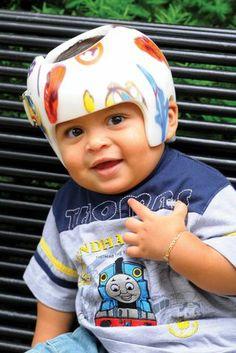 Veamos hoy lo que es la plagiocefalia postural en  los niños http://www.cometelasopa.com/que-es-la-plagiocefalia-postural/