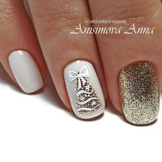 Festive nail art ideas for Christmas to Beautify the Mom.- Festive nail art ideas for Christmas to Beautify the Moment - Christmas Gel Nails, Christmas Nail Designs, Holiday Nails, Christmas Ideas, Winter Christmas, Christmas Colors, Christmas Tree, Winter Nail Art, Winter Nails