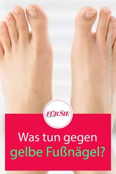 Gelbliche Verfärbungen auf Fußnägeln sind kein schöner Anblick, vor allem im Sommer, wenn die Füße in offenen Schuhen zur Schau getragen werden. Wir erklären die Ursachen auf sagen, wie das Wundermittel Zitrone helfen kann. #fußnägel #schönefüße #gepflegtefüße #pediküre #zitrone #hausmittel #sommer #fuersiemagazin Wellness, Style, Shoes, Beauty Tutorials, Lemon, First Aid, Summer Recipes, Creative, Swag