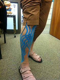 KT Tape Edema-great for the reduction of swelling and bruising