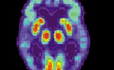 Our Parkinson's Place: Breakdown of brain cells' metabolic collaboration ...