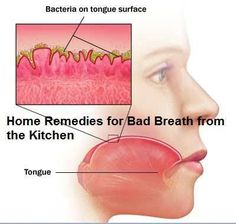 Home remedies for bad breath.