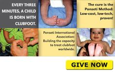 Ponseti International Association: Building the capacity to treat clubfoot worldwide
