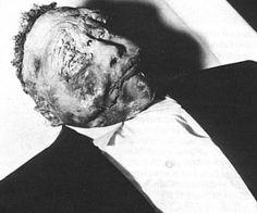 Emmet Louis Till, homem negro que foi morto por assobiar pra uma branca