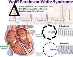 49 Best Wolff Parkinson White Syndrome Images In 2018
