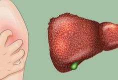 These 5 Symptoms Indicate That You Suffer from Liver Damage!: Your liver is responsible for aiding in food digestion, cleaning your blood, and fighting infections. The good news is that your liver can regenerate. Natural Liver Detox, Detox Your Liver, Liver Failure, Kidney Failure, Liver Detox Symptoms, Get Rid Of Bunions, Sistema Gastrointestinal, Food For Digestion, Thyroid Problems