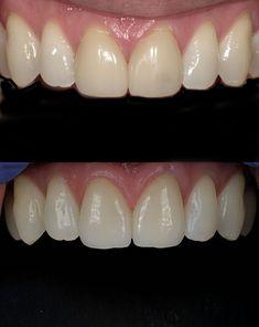 Porcelain Veneers, Cosmetic Dentistry, Top Photo, Dental, Teeth, Cosmetics, Create, Amazing, Pictures