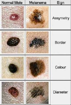 type of skin cancer type of skin cancer