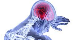 New drug could revolutionize the treatment of Alzheimer's, stroke, brain injury Tumor Cerebral, Brain Tumor, Brain Injury, Chiari Malformation, Hiv Aids, Acide Aminé, Borderline Personality Disorder, Signs And Symptoms, Myasthenia Gravis