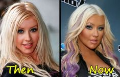 Christina Aguilera before and after plastic surgery-smashingsurgery . Extreme Plastic Surgery, Celebrity Plastic Surgery, Christina Aguilera Plastic Surgery, Celebrity Moms, Celebrity Style, Jessica Simpson Body, Celebrities Before And After, After Workout, Sarah Michelle Gellar